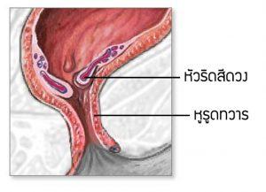 ภาพแสดงให้เห็นถึงหัวริดสีดวงดันปากทวาร ที่ทำให้หูรูดทวารปิดไม่สนิท